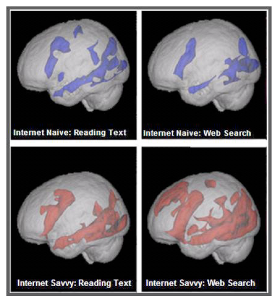 MRI study of the brain of digital Native and Digital Immigrant